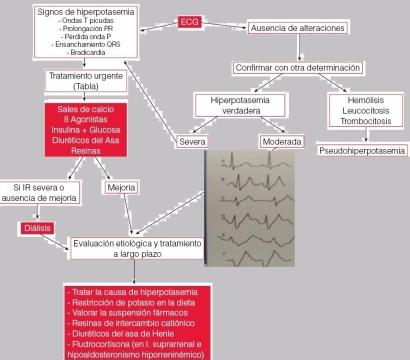 hiperpotasemia-1.jpg