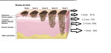estadios melanoma
